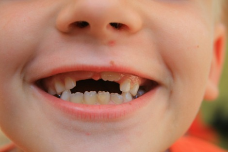 teeth500